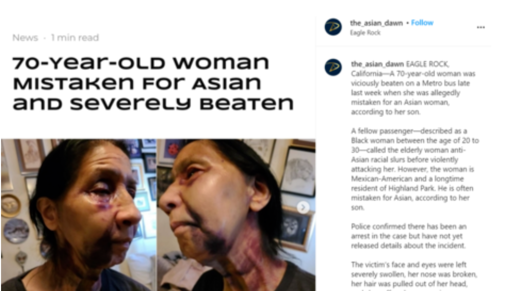 """Mujer de 70 años es golpeada salvajemente en el autobús de Los Ángeles, supuestamente porque """"parecía asiática'' ante una serie de crímenes de odio en California"""